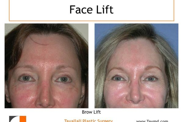 Female Brow lift Forehead lift before after