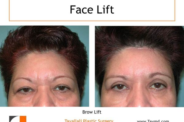 Scar Brow lift Forehead lift before after