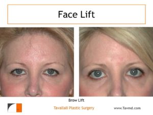 Eyelid lift and Brow lift Forehead lift before after