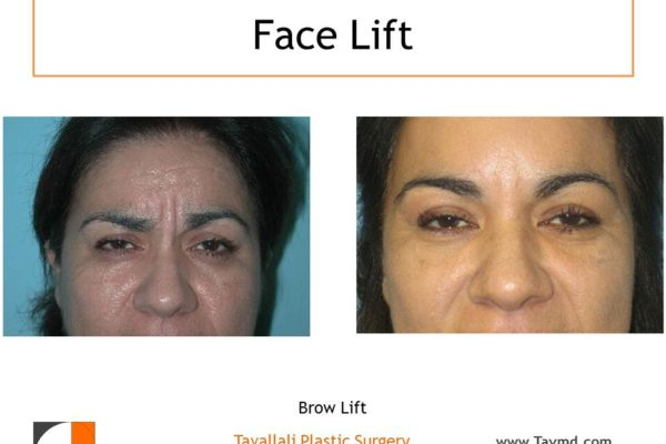 Glabellar muscles Brow lift Forehead lift before after