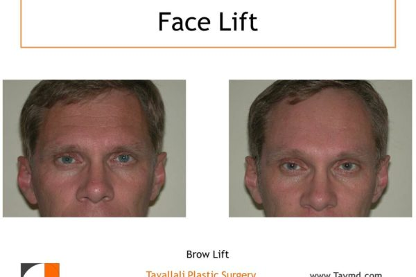 Horizontal line removal Brow lift Forehead lift before after