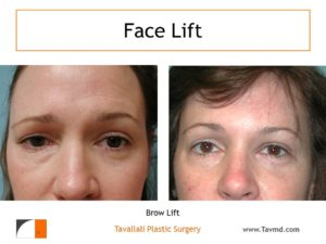 Unilateral brow lift result