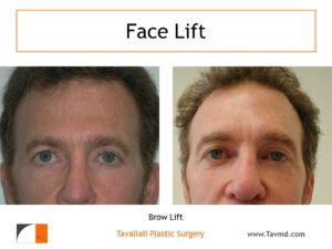 Brow lift Forehead elevation before after
