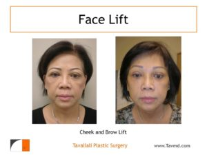 Brow lift Forehead lift and facelift before after