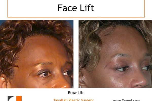 Lateral Brow lift Forehead elevation before after