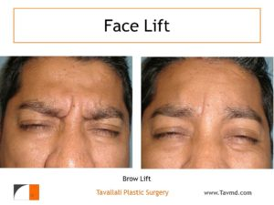 Glabella muscle removal Brow lift Forehead elevation before after