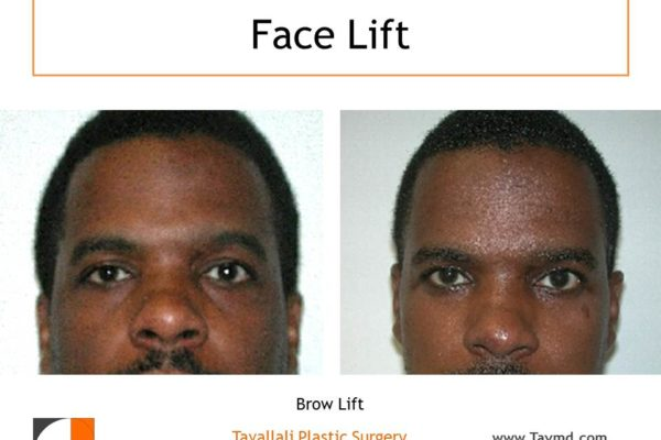 Man with Brow lift Forehead elevation before after