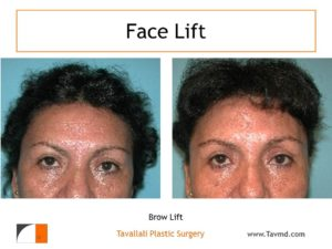 Central brow lift surgery result