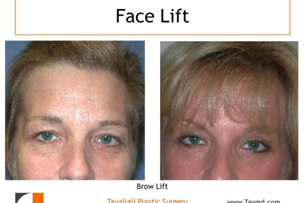 Brow lift and eyelid lift surery