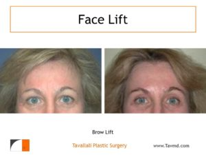 Brow lift Forehead lift before after