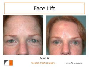 Eyelid lift and brow lift before after in woman