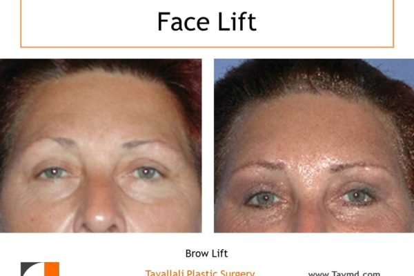 Brow lift surgery result