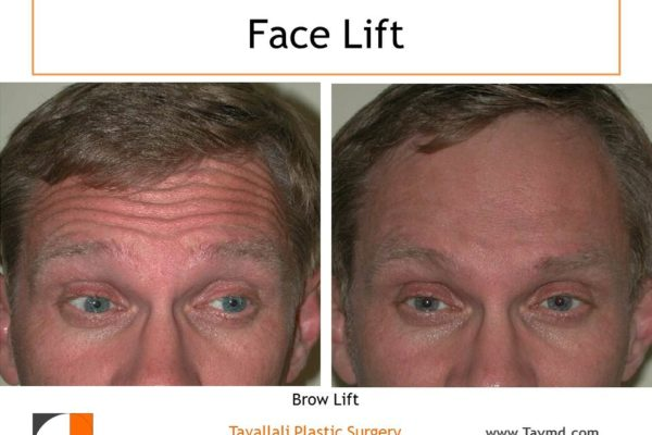 man with brow lift muscle removal