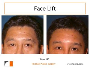 man with brow lift
