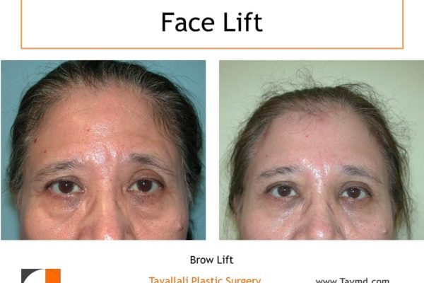 Forehead lift surgery result