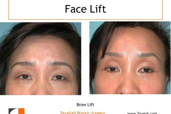 Brow lift Forehead surgery elevation before after