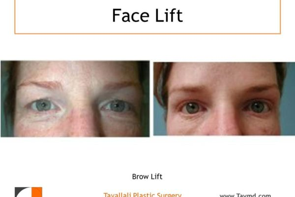 Brow lift Forehead lift and eyelid surgery before and after