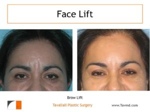 Woman with forehead lift surgery before & after