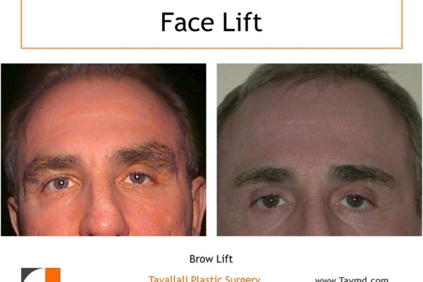 Man with forehead lift surgery result