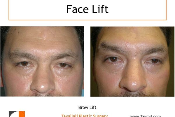 man with heavy set brow before after surgery