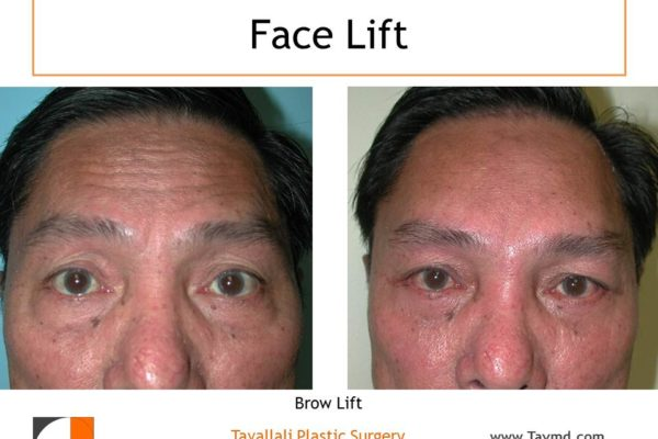 Man with forehead lift surgery before & after