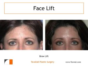 Brow lift removal forehead lines before after