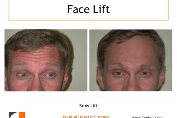 Brow lift, removal forehead lines, before & after photo Vienna VA