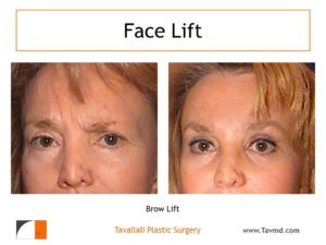 Brow lift Forehead lift with muscle removal before after