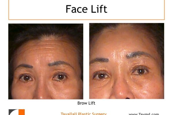 Brow lift Forehead lift before after result