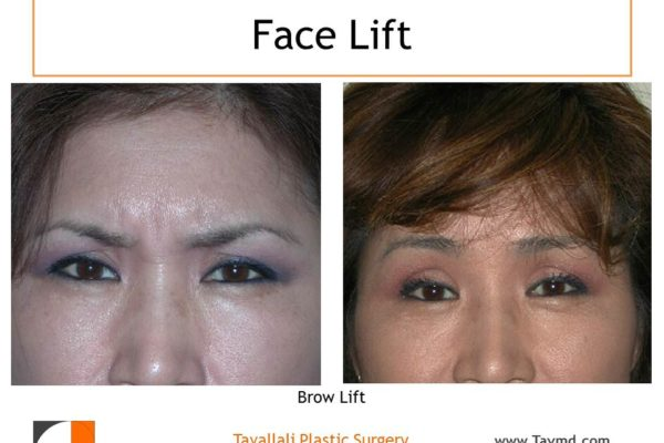 Brow lift Forehead lift muscle removal glabella before after