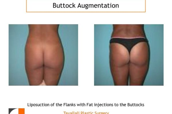 BBL Brazilian buttock lift augmentation of buttocks
