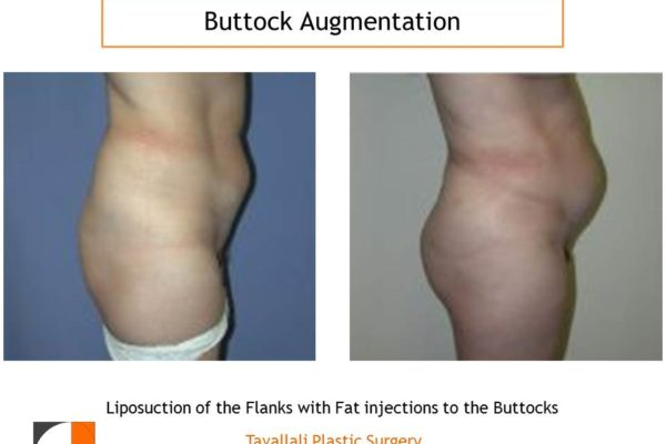 BBL Brazilian buttock lift augmentation results
