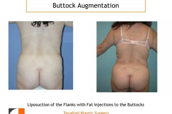 BBL Brazilian buttock lift enlargement of buttocks