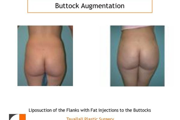 BBL Brazilian buttock lift fat injection to enlarge buttcoks