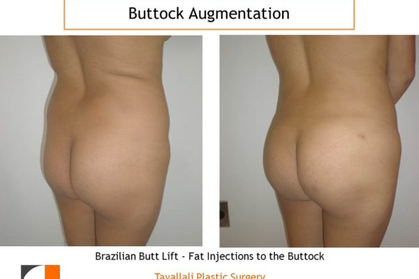 BBL Brazilian buttock lift fat injection to buttocks before and after
