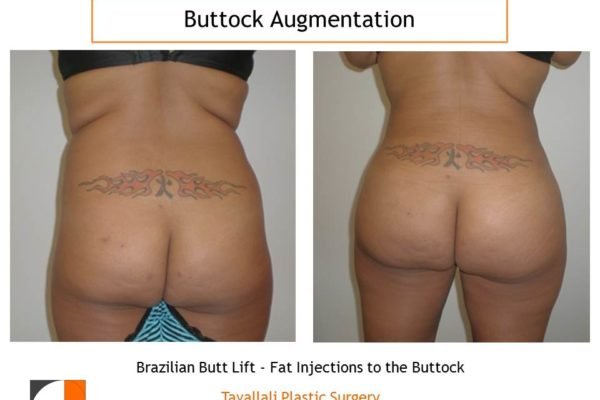BBL Brazilian buttock lift fat injection for buttock enlargement