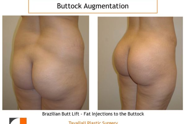BBL Brazilian buttock lift fat injection results