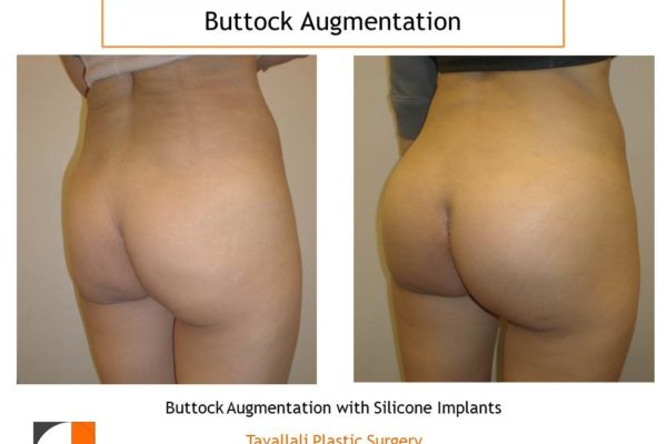 Buttock enlargement with silicone implants