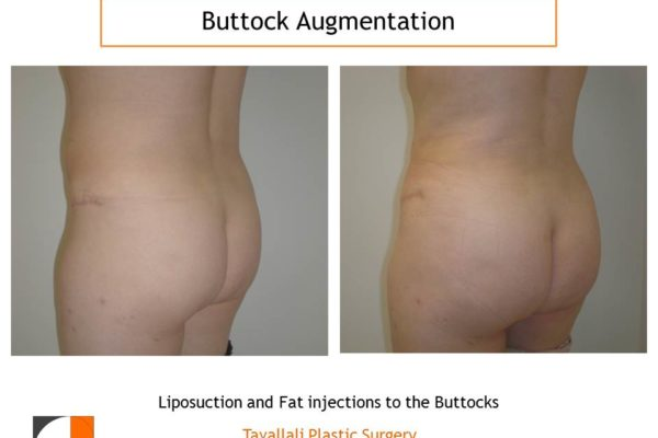 BBL Brazilian buttock lift fat injection to buttocks before after