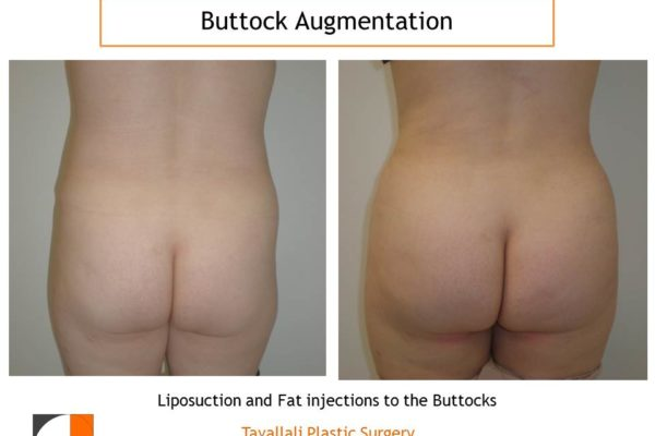 BBL Brazilian buttock lift before after surgery