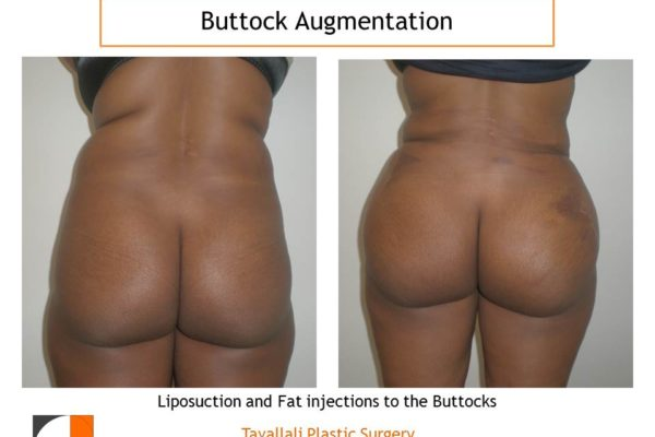 BBL Brazilian buttock lift fat injection for round full buttocks