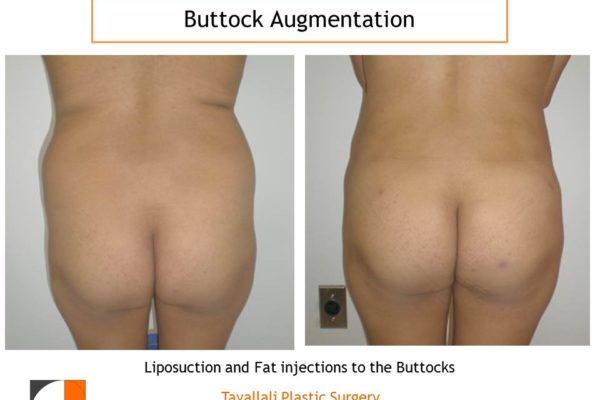 BBL Brazilian buttock lift small fat transfer