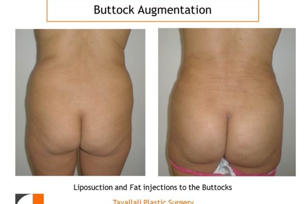 BBL Brazilian buttock lift small fat injection before after