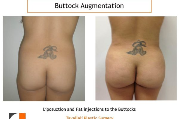 BBL Brazilian buttock lift fat injection result