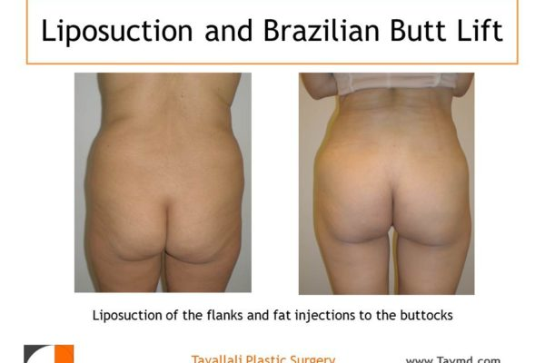 BBL Brazilian buttock lift fat injection to buttocks