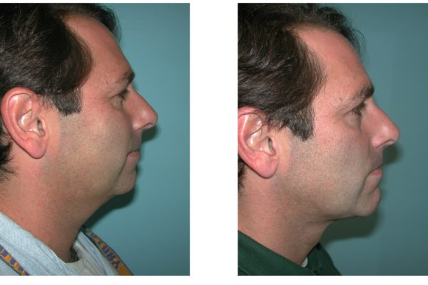 Chin Augmentation before after in man