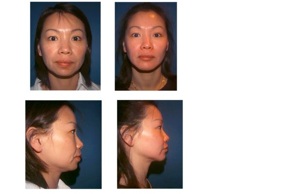 Chin Surgery Before & After in woman