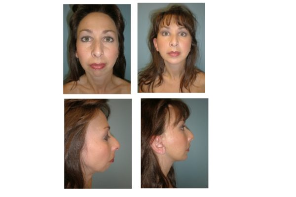 Chin Surgery enlargement with implant