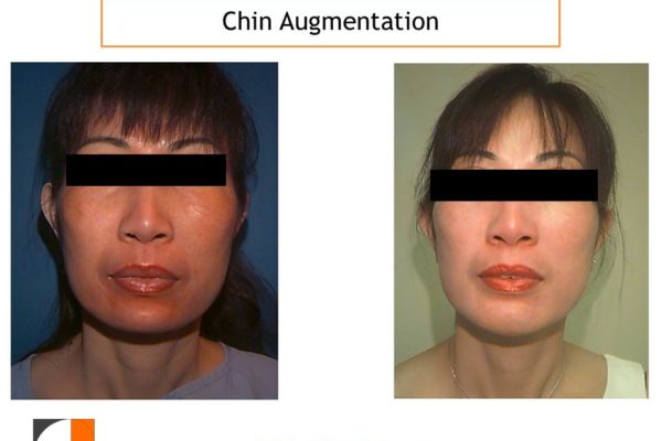 Chin enlargement with silicone implant