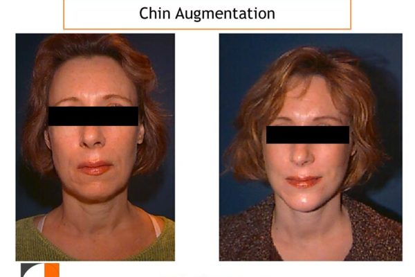 Chin Implant Surgery result